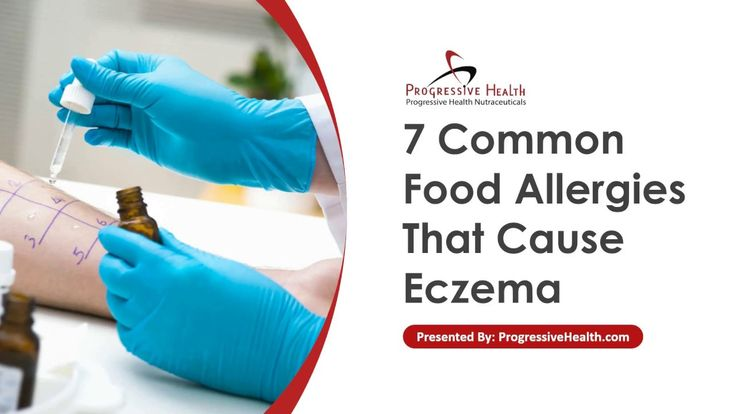 7 Common Food Allergies That Cause Eczema - Certain foods are known to trigger anaphylactic reactions in susceptible people. The hypersensitivity reactions caused by food allergies affect the gastrointestinal tract, the respiratory tract, and the skin.   On the skin, food allergies present as itching and swelling. The only solution is to avoid foods that may trigger your eczema.   But how are food allergies linked to eczema?
