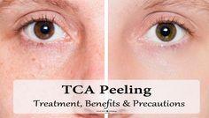TCA Peeling: Treatment Details, Benefits & Precautions