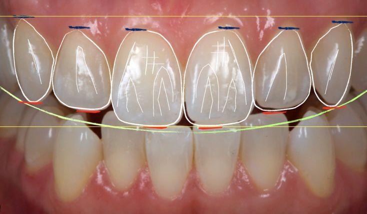 Image result for odontologia estetica