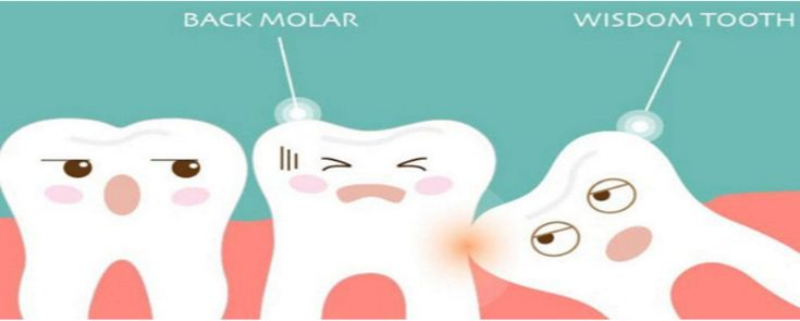 Wisdom Teeth Also Know As The Third Molars  Grow In At The