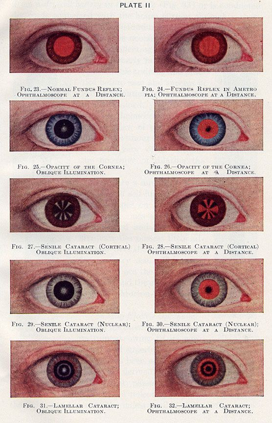 Charles A. Perera, May's Manuel of the Diseases of the Eye, Williams & Wilkins Co., 1943
