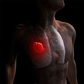 Lung Cancer Life Expectancy, Causes, Types, Symptoms & Stages