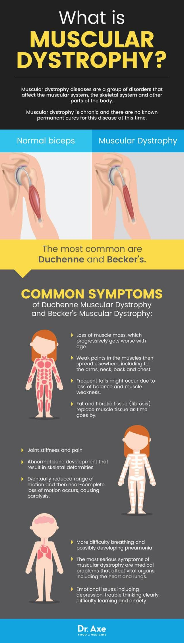 Muscular dystrophy diseases are a group of disorders that affect the muscular system, the skeletal system and other parts of the body. They span across all races and cultures. Muscular dystrophy is chronic and there are no known permanent cures for this disease at this time. Currently, there are only helpful medical treatments that can …