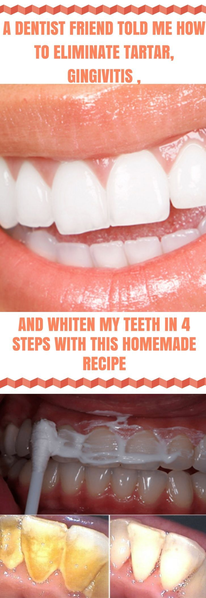 A Dentist Friend Told Me How To Eliminate Tartar, Gingivitis and Whiten My Teeth In 4 Steps With This Homemade Recipe #dental #tartar #gingivitis #white #teeth #homemade #homeremedies #naturalremedies #diy