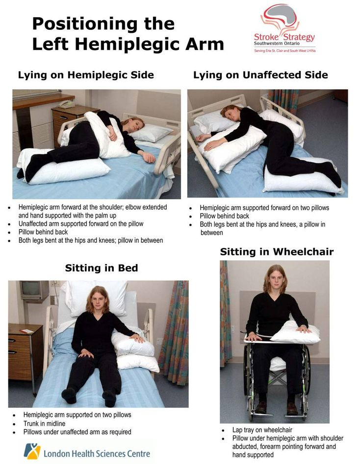 Positioning for hemiplegic arm Repinned by  SOS Inc. Resources  http://pinterest.com/sostherapy.