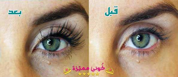 قطرة لوميجان لتطويل الحواجب و الرموش الاسعار و تجارب المستخدمين Lumigan Eye Drop For Eyebrows Eyelashes Price User Experience Eye Drops Eyes