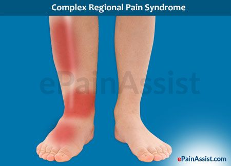 This article is a laymans guide to know what is reflex sympathetic dystrophy or rsd which is also known as complex regional pain syndrome (crps) type 1. Additionally, this article also explains about how common is RSD, what are its triggers, neuropathic pain in rsd, the inflammatory changes in rsd and much more.