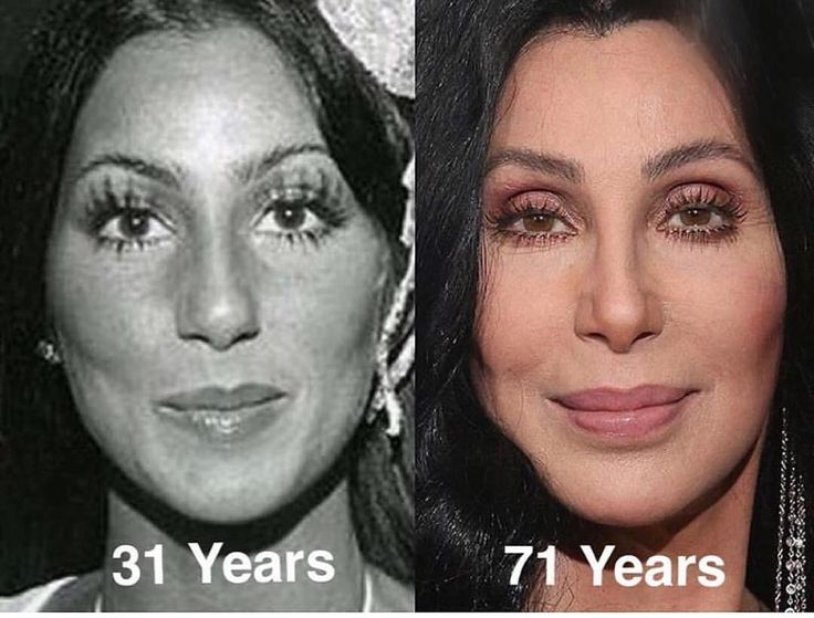 This more natural version of Cher is an overall win in my books- great example! #antiaging #botox #fillers #lipfillers #plasticsurgery #plasticsurgeon #makeover #celebrity http://tipsrazzi.com/ipost/1523159320286653885/?code=BUjWVTuAu29