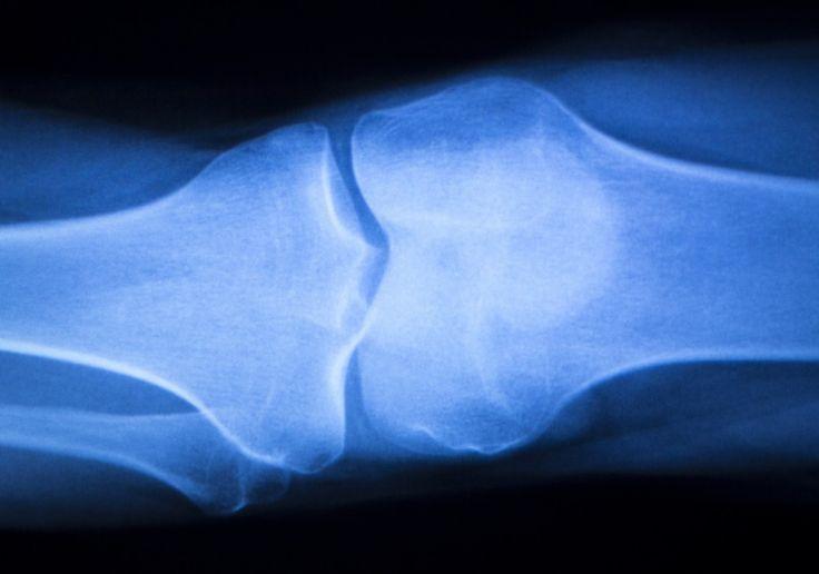 La greffe de ménisque, une intervention encore rare: Greffer un rein ou un lambeau de peau… #A_la_une #chirurgie #genou #greffe #ménisque
