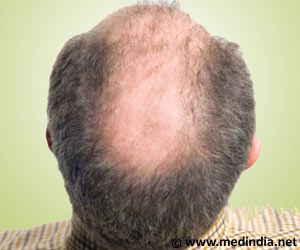 Androgenic alopecia is also known as alopecia androgenetica or androgenetic alopecia. It is defined as loss of hair especially in the crown region of the head.
