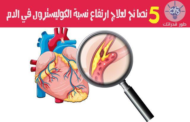 ما هو ارتفاع الكوليسترول الكولسترول هو مادة دهنية توجد في الدم يقوم الجسم بانتاج بعض الكوليسترول في حين تحصل على الباقي من الأطعمة White Out