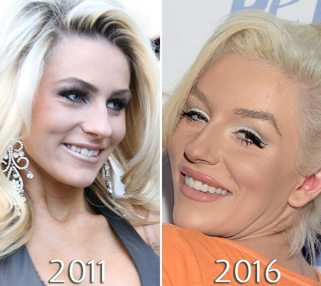 Courtney Stodden before and after veneer
