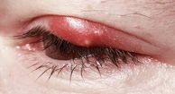 Eyelid inflammation blepharitis Blepharitis is inflammation of the eyelash follicles. Its cause is unclear, but allergies, mites, dandruff, and certain medications may increase the likelihood of this form of inflammation.