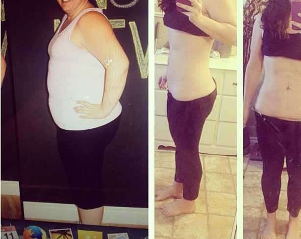 weight loss prior to tummy tuck