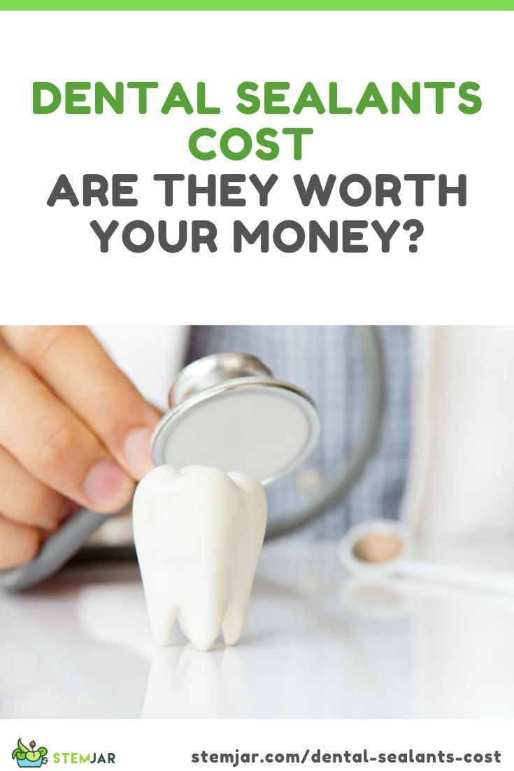 Dental sealants cost are they worth your money dental