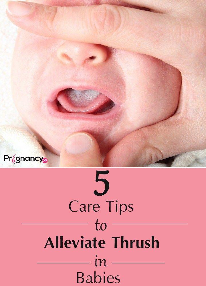 Thrush In Babies