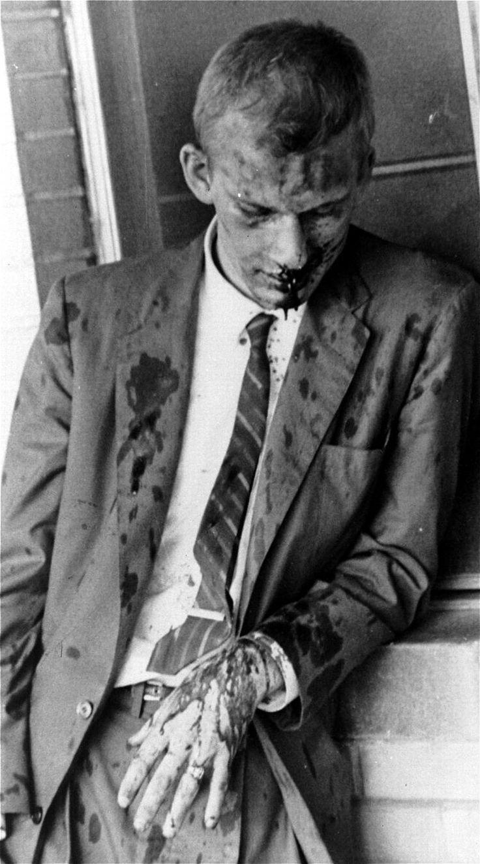 Jim Zwerg - белый активист организации всадников свободы, который был жестоко избит местными нацистами после выхода из автобуса в Монтгомери, штат Алабама (1961 год)