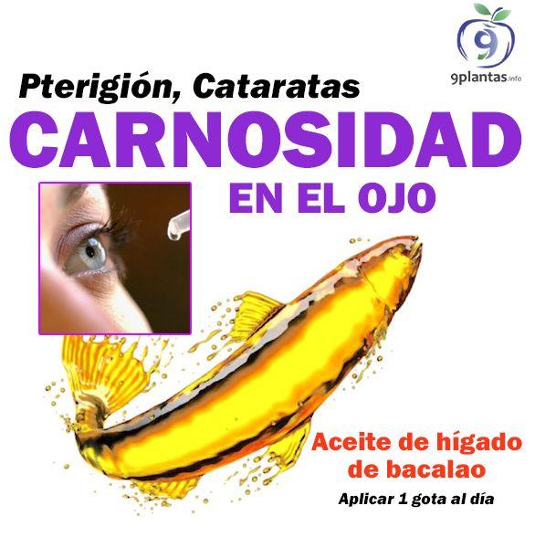 CARNOSIDAD EN LOS OJOS: Aceite de hígado de bacalao. Una gota cada día en el ojo afectado.