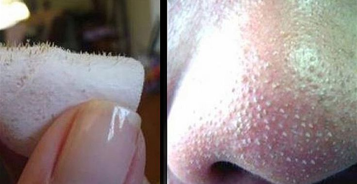 THIS One Easy Trick Can Get Rid Of All Those Annoying and Gross Blackheads Instantly! || Using Lemon & Salt