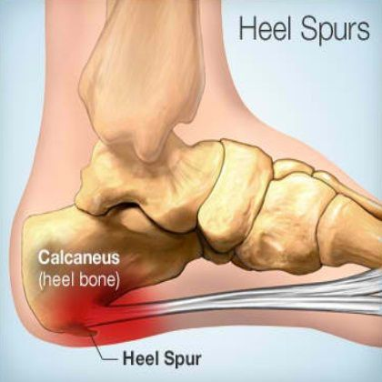 how to get rid of spurs in foot