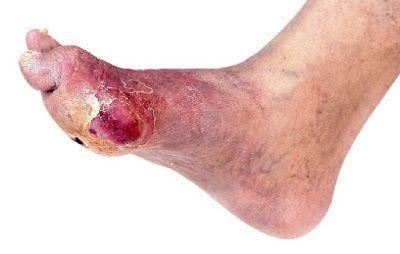 Mengapa diabetes seringkali menyerang kaki ? Inilah alasannya