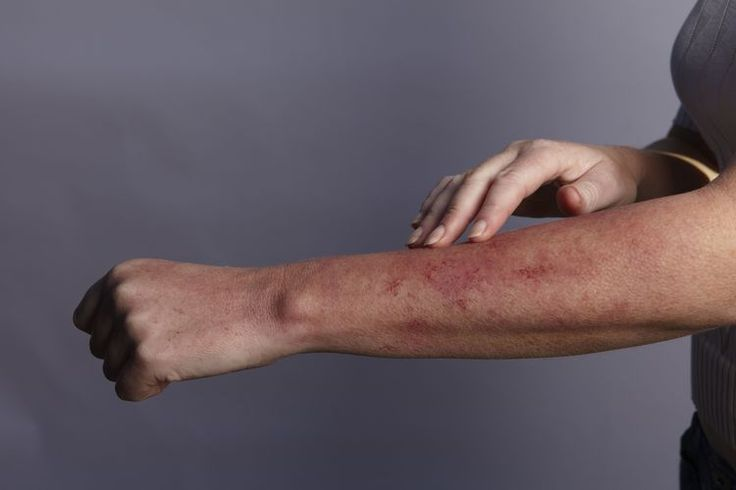 Skin Conditions That Might Be a Sign of a Gluten Allergy