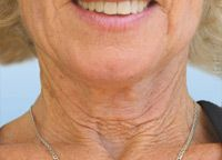 Facial Exercises For Face Toning And Firming: Baggy Turkey Neck Exercises For Women And Men Who Want To Look Younger