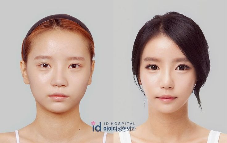 Check out our blog and see our videos on real experiences at ID Hospital! #rhinoplasty #blepharoplasty #eyelid #mandible #orthognathic #facial #face #eyes #nose #lips #beauty #contouring #plasticsurgery #surgery #korea #gangnam #seoul #busan #koreans #kpop #nosesurgery #breastaugmentation #boobjob #lipo #liposuction #skin #aging #lifting #botox #filler #restylane #koreanplasticsurgery #asianeyelid #asian #beverlyhills #plasticsurgeon #surgeon #best #cheekbone #accusculpt #ulthera #wrinkles