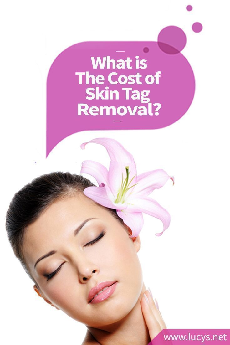 What Is The Cost Of Skin Tag Removal Skintighteningbelly