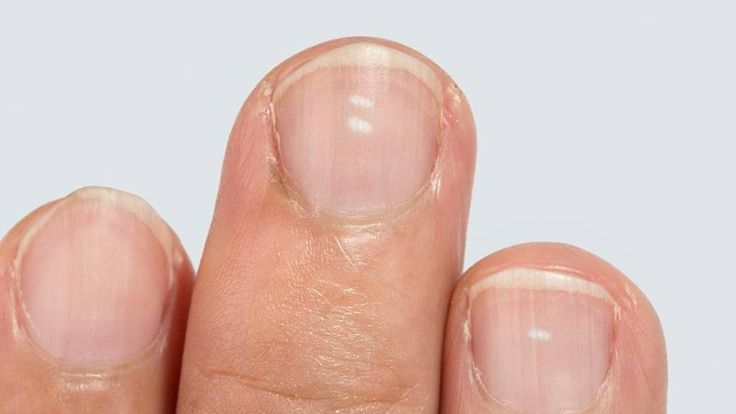 WHAT DO YOUR NAILS TELL YOU ABOUT YOUR HEALTH?   Your nails can tell you so much about your health, and natural medicine practitioners often use the nail as an observation method to assess health on a deeper level.
