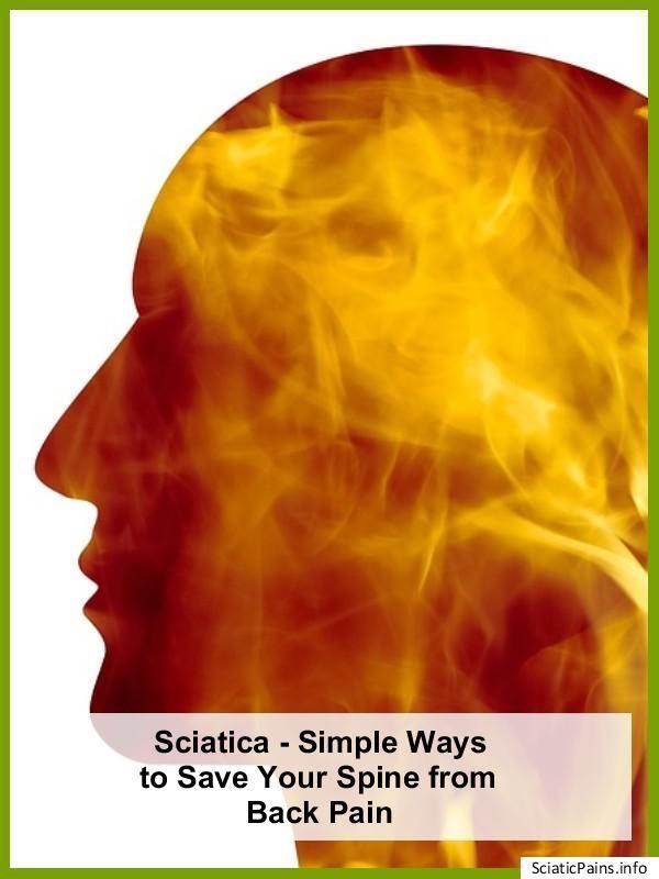 Pin On Sciatica Cure