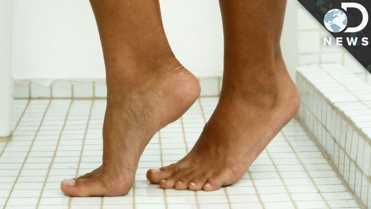 What Causes Warts?