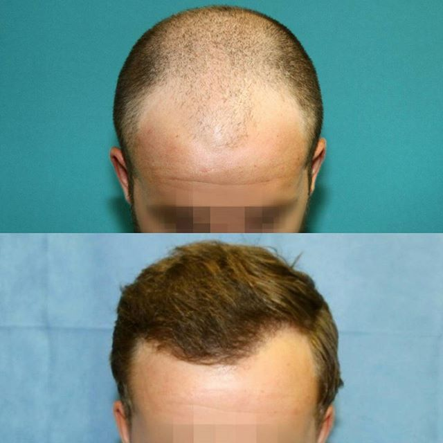 Life changing results ✅ •Before and After•  We transplanted 3104 grafts to transform this client's hairline. 👊  #hair  #hairloss  #hairrestoration #hairlosstreatment #fue #hairsurgery #hairtransplant #balding #transformation #beforeandafter #confidence