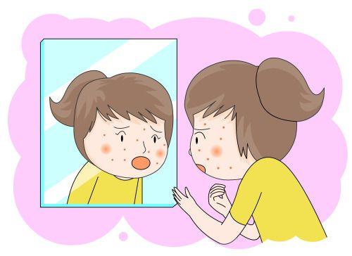Wonjin Plastic Surgery, yang merupakan bagian dari Wonjin Beauty Medical Group yang sudah dikenal dengan pengalamannya lebih dari 20 tahun, memiliki solusi tepat untuk mengurangi bekas jerawat!