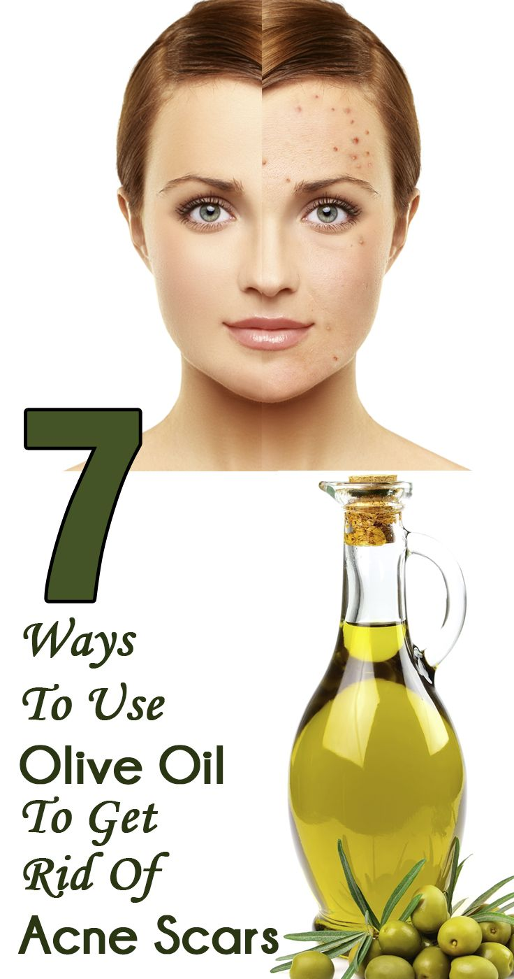Acne is certainly one of the worst skin problems that we experience from time to time. Given here are 7 easy ways to use olive oil for acne scars. Read on to know more