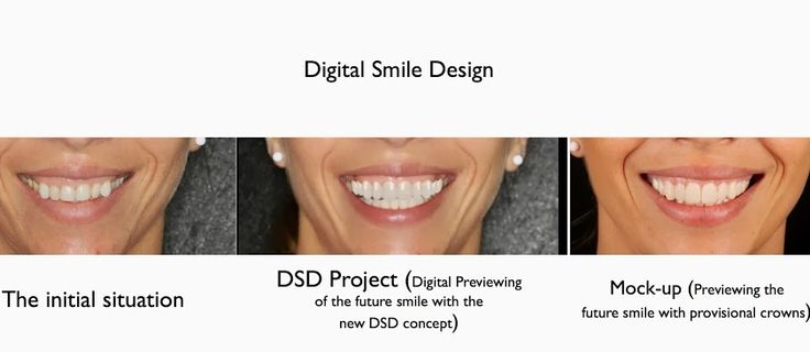MEDICAL TOURISM IN ROMANIA - DIGITAL SMILE DESIGN - A TREND  OR AN INDISPENSABLE TOOL IN THE AESTHETIC DENTAL OFFICE? www.intermedline.com  #dental #dentist #dentistry #dentalclinic #teeth