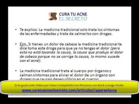 Remedios Populares para el Acne - SECRETOS - http://solucionparaelacne.org/blog/remedios-populares-para-el-acne-secretos/