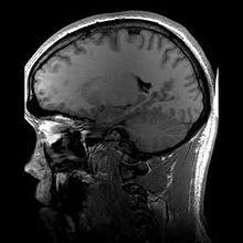 File:Structural MRI animation.ogv
