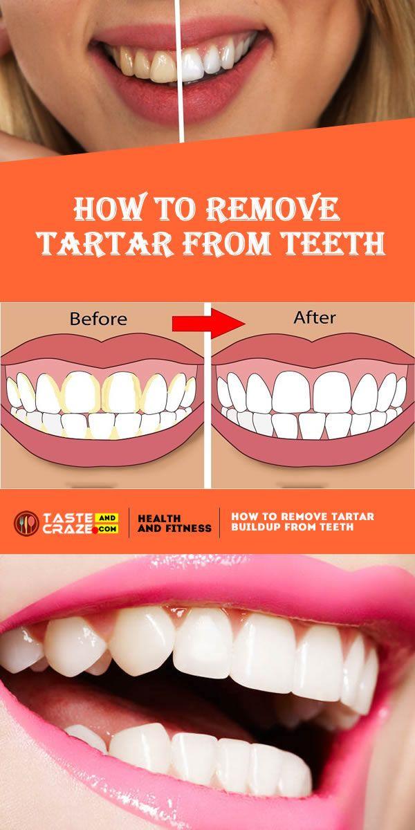 ad998c5b569e9f82e67e08bb2df6b6ac - How To Get Rid Of Black Tartar On Teeth