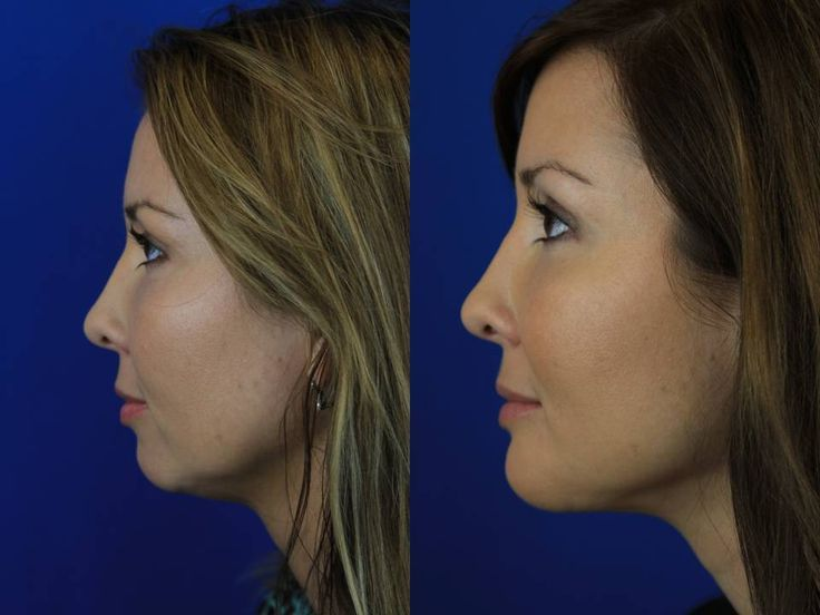 young girl, jaw implant, liposuction neck - Google Search ...