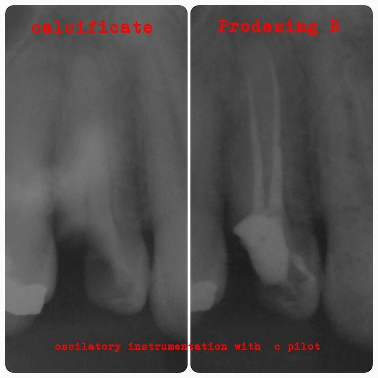 Very Hard canal! #endodontia #endodontiadodia #endodontics #endodontic #endodontist #endodontie #endodontistas #endodontista #endodoncia #endodontictreatment #endodonticspecialty #canalradicular #endodontiamaceio #root_canal #endolovers #endolantinos #tratamentoendodontico #tratamentodecanal #tratamentodecanalemsessaounica #dentistry #dentistrylife #onesinglevisit #sessaounica #dentistrymyworld #endodonticcase #odontologia #odontology #dentistas #dentista by samunogueira Our General…