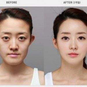 Visit our site http://superstarplasticsurgery.net/ for more information on Plastic Surgery Before And After. Lee Min-ho is a South Oriental actor, singer and design. He has been open with disclosing the reported Lee Min Ho plastic surgery though and has actually been sharing the operations he has actually been through. Among the stated operations is rhinoplasty.