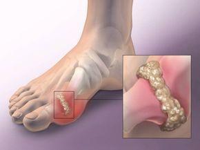 Takto rýchlo z tela dokážete odstrániť kryštalizovanú kyselinu močovú a predísť bolestiam kĺbov! | TOPMAGAZIN.sk