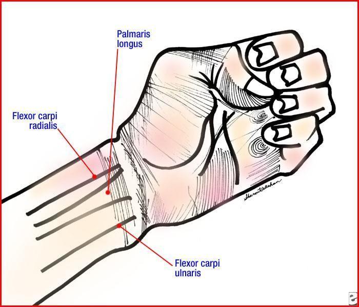 Soft Tissue Hand Injury: Background, Pathophysiology, Epidemiology