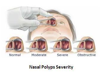 nasal polyps severity