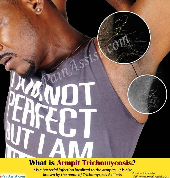 What Causes Armpit Trichomycosis & How to Get Rid of it? | Skin