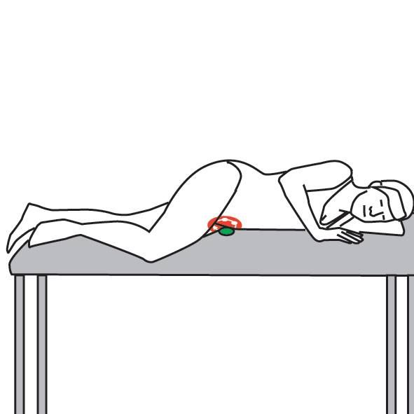 The Tensor fascia lata is implicated in a range of lower extremity problems. Especially active in runners and athletes, trigger points can cause a host of unwanted effects. Fortunately due to its mechanical position it lends itself to a range of trigger point techniques, stretches and self help approaches. Here's a great self-help technique you can use to relieve your symptoms.