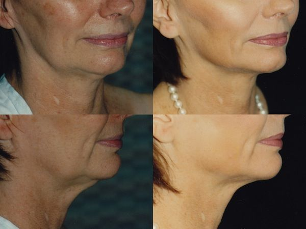Neck Liposuction Before and After Photos by Dr. Mark Anton. For more plastic surgery before and after pictures please visit http://www.antonaesthetics.com/neck-liposuction-photo-gallery/ #goodplasticsurgery #lipo #fat #neck #antiaging