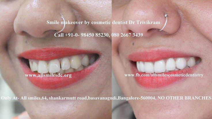 It's time for you to have the smile you have always dreamed of. When you look good, you feel good too. Fix a cosmetic dental consultation with the expert cosmetic dentist Dr Trivikram(Dr Vikram) to discuss the smile makeover options with Veneers, Crowns, Laminates and Bonding if you have teeth with gaps, crooked teeth, oversized, small teeth, dark teeth, protruding or fractured teeth, bad fillings or old crowns. . This treatment is not a surgery and your teeth can be straightened without…