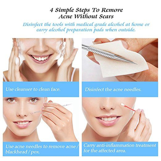 Top 10 Best Blackhead and Pimple Remover Tools Kit review 2017